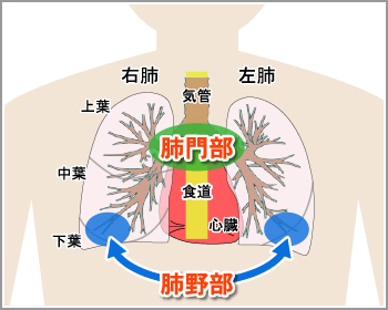 lung_cancer_img01.jpg
