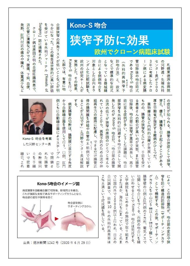 konos吻合_徳州新聞掲載.jpg